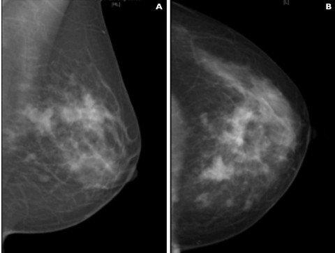 La terapia ormonale a scopo adiuvante nel carcinoma mammario ad alto rischio di ricaduta in premenopausa