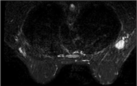 La terapia ormonale per 10 anni nel carcinoma della mammella è consigliabile? Un caso clinico
