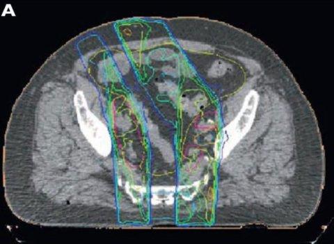 La radioterapia a intensità modulata con sovradosaggio integrato simultaneo (SIB-IMRT) sul cN positivo in associazione ad ADT in un caso di recidiva di tumore prostatico post-prostatectomia