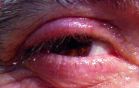 Case report: relapsing blepharitis