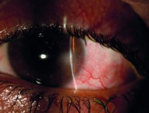 Blefaro-cherato-congiuntivite cronica e infiltrato corneale vascolarizzato associati a disfunzione delle ghiandole di Meibomio (MGD): management diagnostico-terapeutico