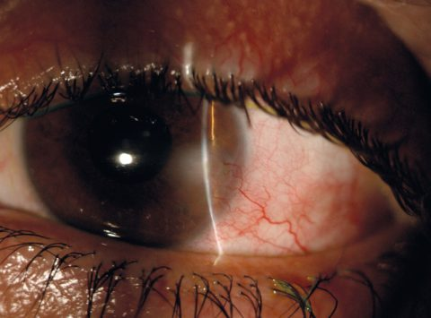 Chronic blepharo-kerato-conjunctivitis and vascularized corneal infiltrate in Meibomian gland dysfunction: diagnostic and therapeutic management